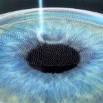 cura miopia astigmatismo ipermetropia con femtolaser